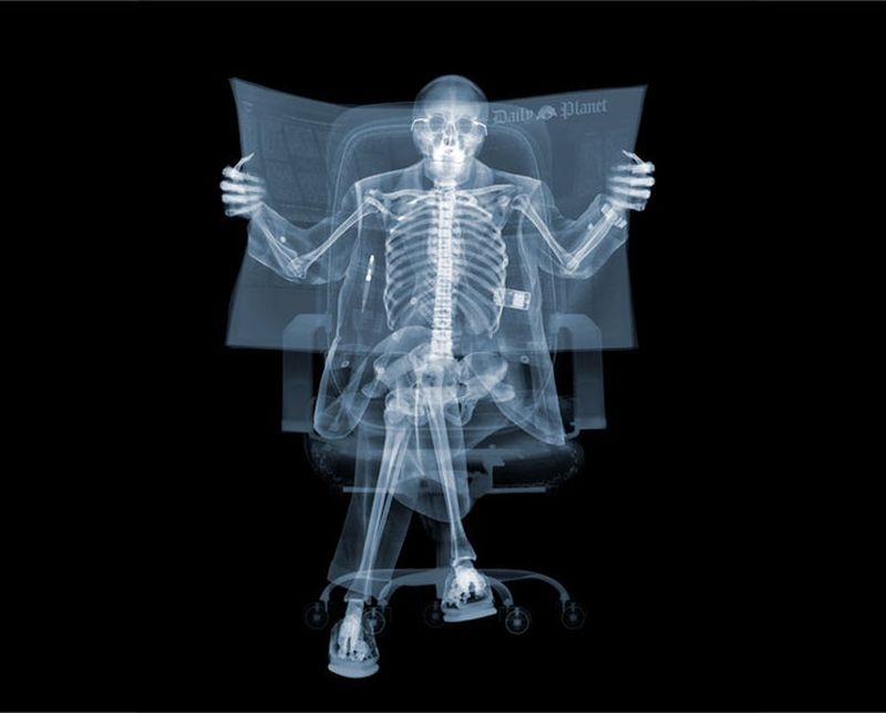 Лучи рентгеновские фото